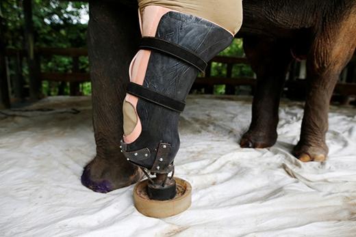 Tuy nhiên Motola lại không thoải mái lắm với chiếc chân giả và còn có nguy cơ bị lở loét do nằm liệt lâu ngày. (Ảnh: Reuters)