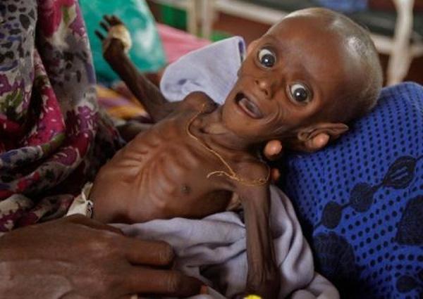 Mihag Gedi Farah, em bé 7 tháng tuổi bị suy dinh dưỡng nặng với trọng lượng chỉ đạt khoảng 3.4 kg trong vòng tay mẹ tại một bệnh viện dã chiến cảu Ủy ban cứu hộ quốc tế tại tại thị trấn Dadaab, Kenya.
