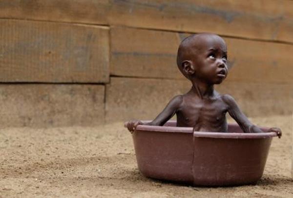 Eden Salaad, 4 tuổi mải miết tìm mẹ khi đang được tắm rửa trong một chiếc chậu vỡ tại bệnh viện Medecins Sans Frontieres, nơi Eden đang được điều trị suy dinh dưỡng.