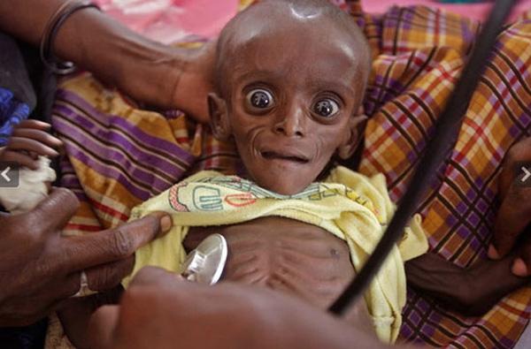 Bác sĩ đang kiểm tra sức khỏe cho bé 7 tháng tuổi mới nặng 3,4 kg tại Dadaab, Kenya.
