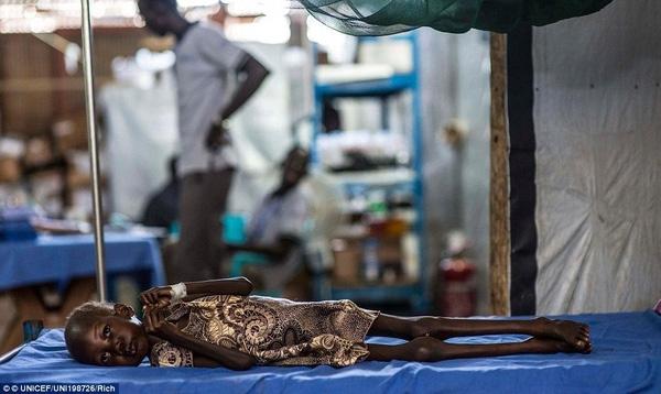 Cô bé Nyajime, ở Nam Sudan chỉ nặng có 9 kg, cơ thể chỉ còn lại da bọc xương, không thể đi lại và ngồi khi nạn đói hoành hành nơi đây.