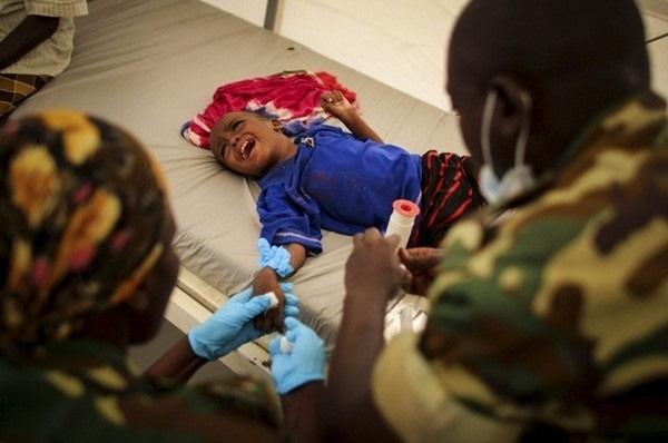 Cứ 1.000 trẻ em thì có đến 180 em không sống quá 5 tuổi vì suy dinh dưỡng nặng ở đất nước nghèo đói Somali.