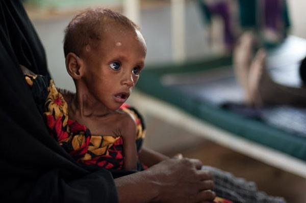 Cô bé này cũng đang chết dần chết mòn vì nạn đói hoành hành.