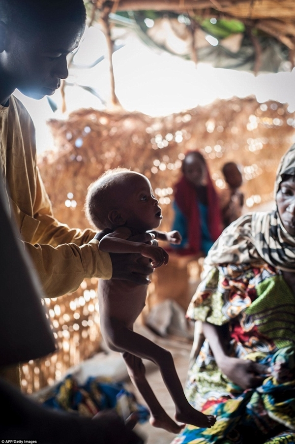 Liên Hợp Quốc cảnh báo khoảng 50.000 trẻ em nước này có nguy cơ chết đói.