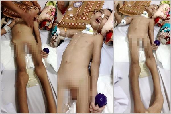 Bé Nguyễn Quốc Anh (12 tuổi) đang phải sống kiếp thực vật trong bệnh viện vì gia đình không đủ tiền điều trị. (Ảnh: FBNV)