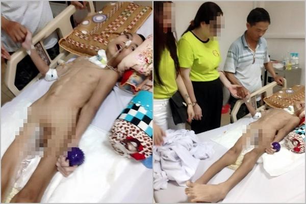 Có người hỏi rằng tay chân bé sao lại thẳng đơ như vậy, một anh đến thăm đã giải thích rằng vì nằm một chỗ quá lâu, nên cơ tay/chân đều bị teo cứng lại. (Ảnh: FBNV)