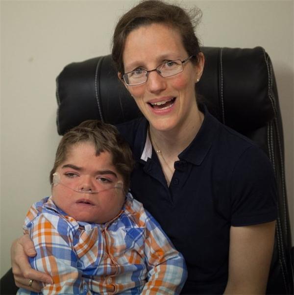 Sau khi người mẹ gặp tai nạn giao thông trong khi đang mang thai, cậu bé Jonathan bị thiếu oxy và bại não, phải ngồi xe lăn và thởoxy suốt phần đời còn lại.