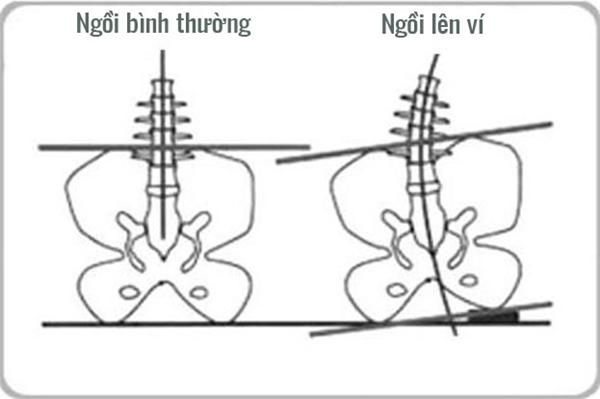 Chiếc ví dày cộm bên dưới mông khiến cho xương chậu bị mất cân bằng và các đốt sống lưng cũng bị vẹo sang một bên, về lâu dài dẫn đến đau lưng và đau thần kinh tọa.(Ảnh: Internet)