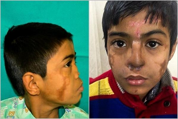 Hình ảnh trước và sau khi cậu bé Arun Patel được phẫu thuật cấy ghép mũi.(Ảnh Dailymail)
