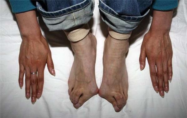 Sốc với đôi bàn chân biến dạng của cựu vận động viên điền kinh