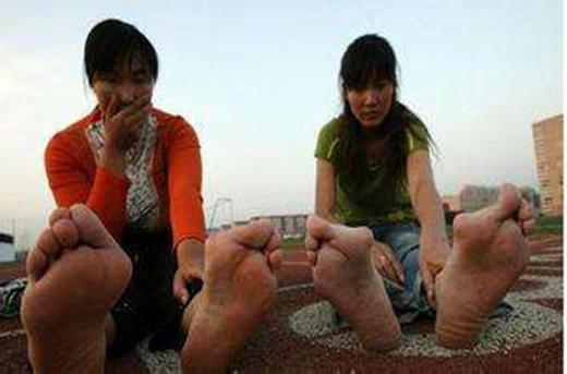 Chế độ tập luyện hà khắc đã khiến đôi chân cô trở nên dị dạng, khác thường. (Ảnh: Interent)