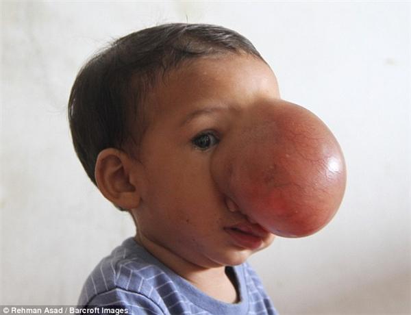 Đến khi bé Chingrung MROđược 9 tháng tuổi, gia đìnhbiết bé mắc phải chứng bệnh hiếm gặp - u hạch thần kinh đệm.(Ảnh Barcroft)