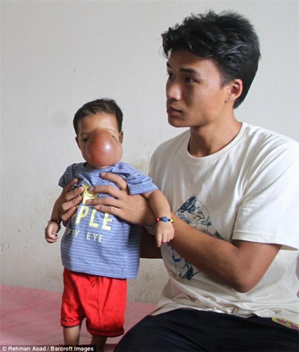 Gia đình quá nghèo, không thể thanh toán chi phí điều trị cho bé. Tưởng như đã hết hi vọng thì lại nhận được sự trợ giúp của rất nhiều người.(Ảnh Barcroft)