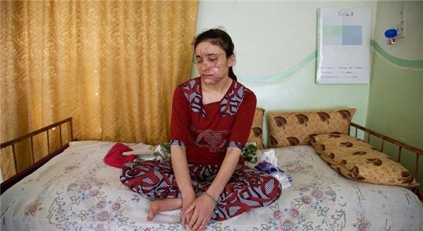Gương mặt chằng chịt vết sẹo vì bom và một đôi mắt đã không nhìn thấy đường nữa.
