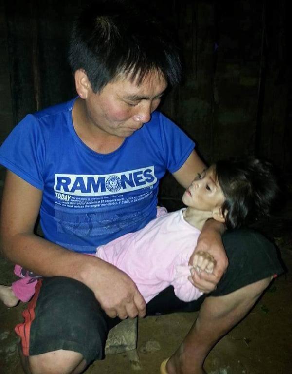 Yến Nhi đã 14 tháng tuổi nhưng chỉ nặng vỏn vẹn 3,5kg. Ảnh: Internet