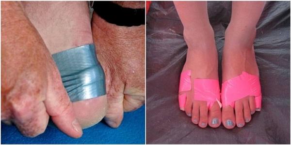 Quấn băng dính giúp bạn không bị đau và phồng chân khi đi bộ nhiều.