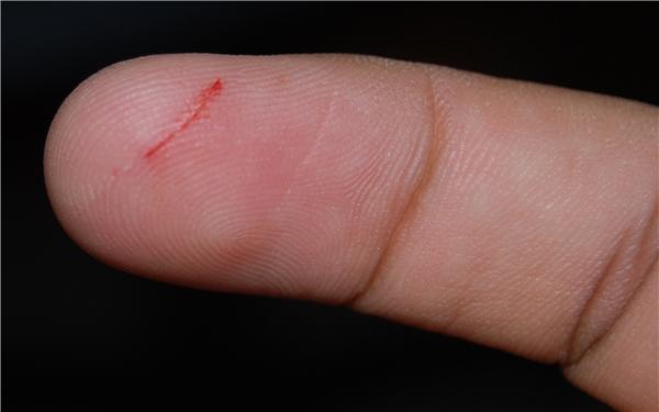 4. Tận dụng son dưỡng môi và thoa lên vết đứt tay. Son dưỡng môi có tác dụng làm lành vết thương và cầm máu tức thì.