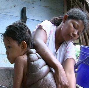Bố mẹ Didiergặp khó khăn trong việc tắm rửa, chắm sóc em.