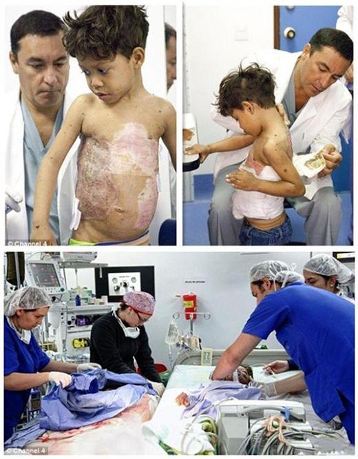 Xót thương cậu bé 6 tuổi phải mai rùa nặng 4,9kg trên lưng