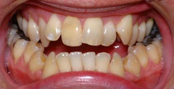 Người có cấu trúc răng không đều sẽ thường xuyên cắn nhầm vào lưỡi.