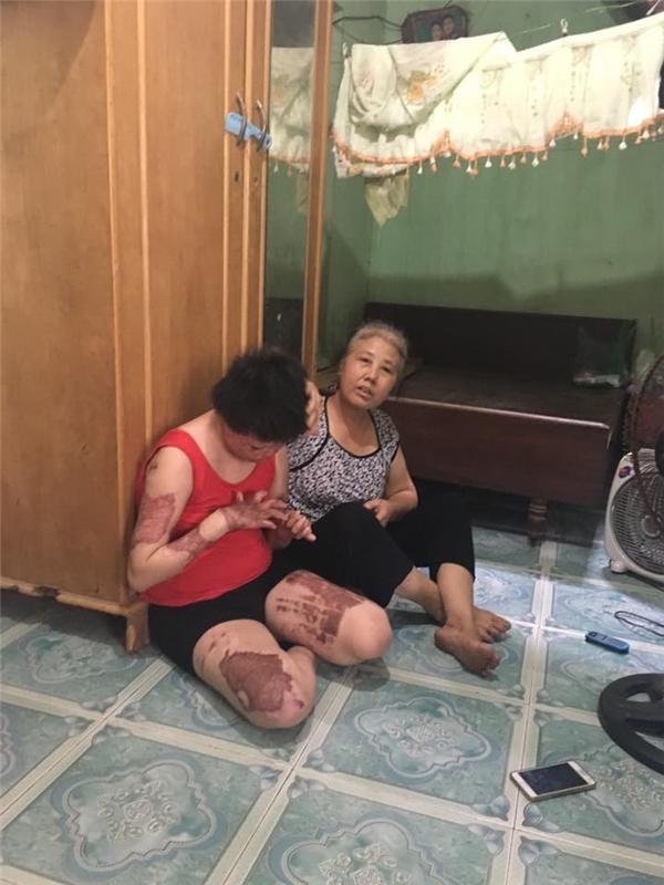 Mẹ Dung đau xót bên con gái nhỏ. (Ảnh: Intetnet)