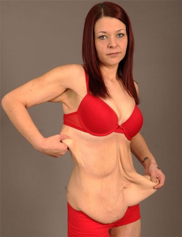 Khi giảm cân trở thành cơn ác mộng kinh hoàng