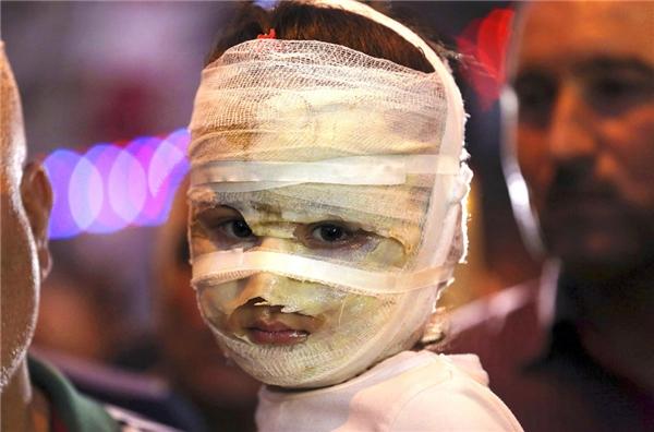 Asal Ahmed, 4 tuổiđược cha cô bébế ngaytại hiện trường một vụ đánh bom xe tự sát lớn trong Karada, Iraq.Asal và mẹ của cô đã bị bỏng nặng khi họ đi mua sắm cho kỳnghỉ của người Hồi giáo Eid al-Fitr.(Ảnh: Hadi Mizban)