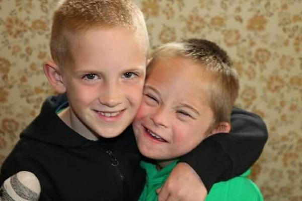 Bộ ảnh tình yêu trong veo của anh và em trai mắc hội chứng Down từng khiến hàng triệu trái tim rung động