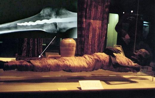Người ta phát hiện ra có một cây đinh dài 22cm ở trong xác ướp.