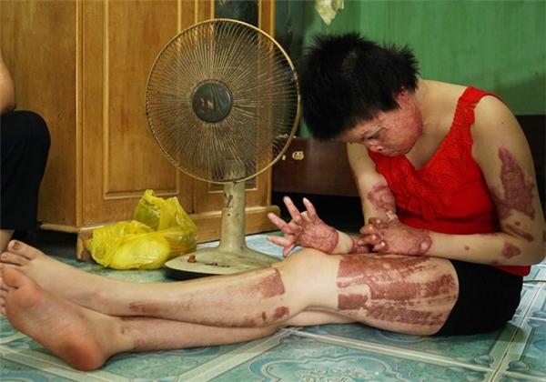 Từ một cô gái xinh đẹp, gương mặt của Thùy Dung đã bị biến dạng vì chồng tẩm xăng đốt. (Ảnh: Internet)
