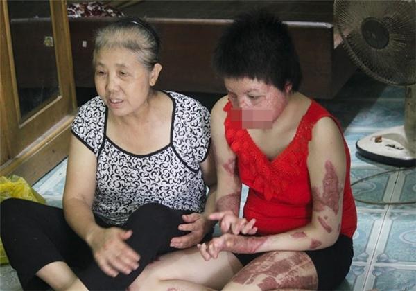 Tình trạng bỏng rất nghiêm trọng của Thuỳ Dung. (Ảnh: Internet)