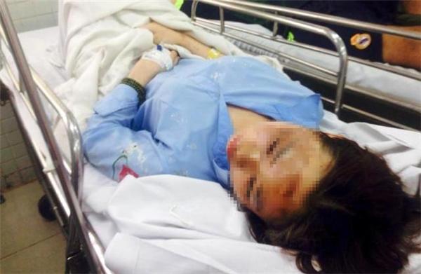 Thu Hương bị tổn thương 75% khuôn mặt và mù mắt bên trái.