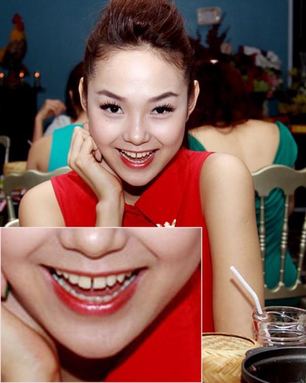 Nữ ca sĩMinh Hằng sở hữu gương mặt dễ thương, xinh xắn. Tuy nhiên, người đẹp lại có khuyết điểm ở hàm răng với hai chiếc răng trên cửa cách xa nhau khiến khuôn miệng cô trở nên giảm bớt sự sứchút. - Tin sao Viet - Tin tuc sao Viet - Scandal sao Viet - Tin tuc cua Sao - Tin cua Sao