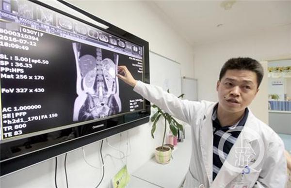 Bác sĩ của cô Vương sau khi siêu âm tổng quátđã cho thấy ảnh chụp thai nhi đang nằm trong lá lách.