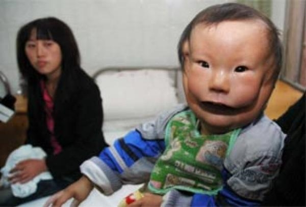Câu chuyện khiến bạn rơi nước mắt về một cậu bé mang hai khuôn mặt