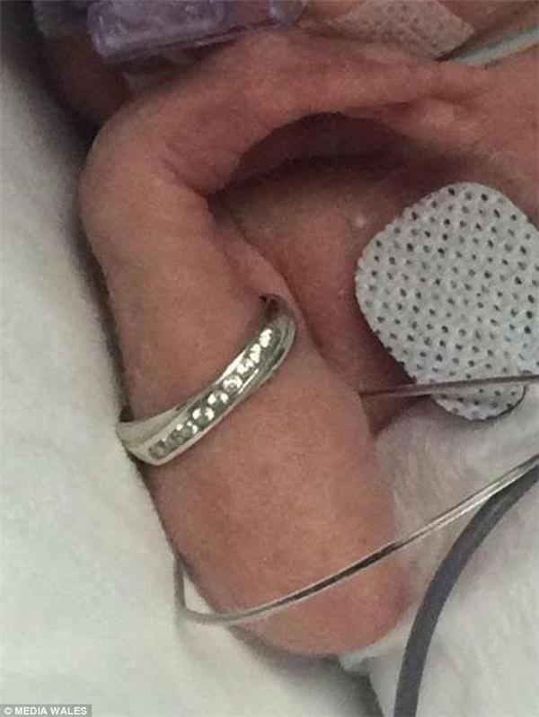 Để xoa dịu sự lo lắng, giúp đôi vợ chồng trẻ hiểu được những hạn chế bệnh viện đặt ra cho họ quan trọng đến mứcnào đối với sinh mạng đứa trẻ, cô y tá còn mượn chiếc nhẫn cưới của Tiffany để xỏ vào cánh tay nhỏ bé của Alice, chứng minh sự nhỏ bé, yếu ớt của bé con.(Ảnh Media Wales)
