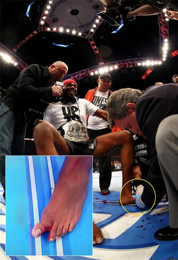 Rợn người với những chấn thương kinh hoàng nhất lịch sử MMA