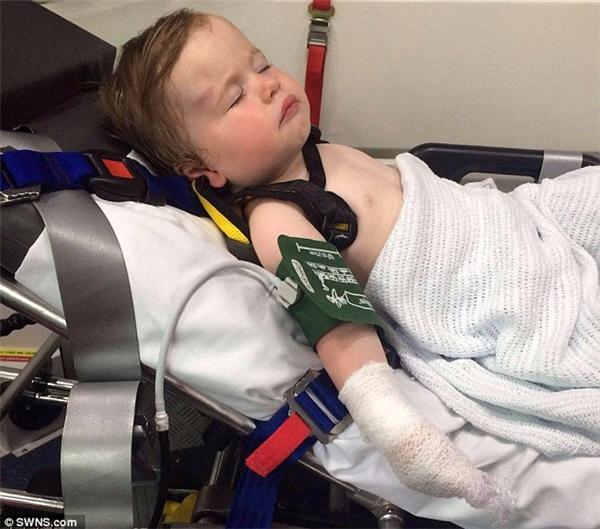Cảnh báo: Bé gái 1 tuổi bị bỏng nặng khi đang chơi trong công viên