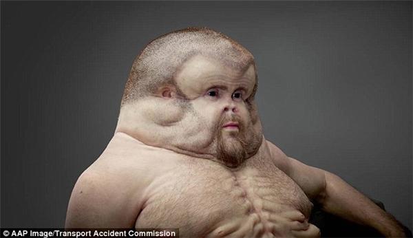 """Cơ thể của Graham có cấu tạo đặc biệt với phần ngực rộng, đầu phồng to, không có cổ… giúp """"anh"""" sống sót sau bất cứtai nạn giao thông thảm khốc nào.(Ảnh: Daily Mail)"""