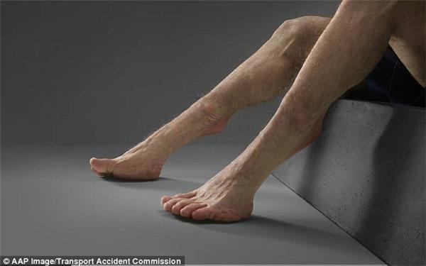 Bác sĩ Kenfield cho rằng ngay cả người khỏe mạnh nhất thế giới cũng khó có thể tránh khỏi thương tổn nặng trong các vụ tai nạn xe cộ. (Ảnh: Daily Mail)