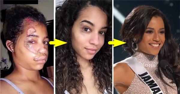 Chấn thương từngđể lại vết sẹo dài xấu xí trên gương mặt người đẹp.