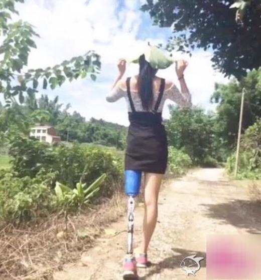 Trong một vụ tai nạn, cô gái đã vĩnh viễn mất đi một bên chân.