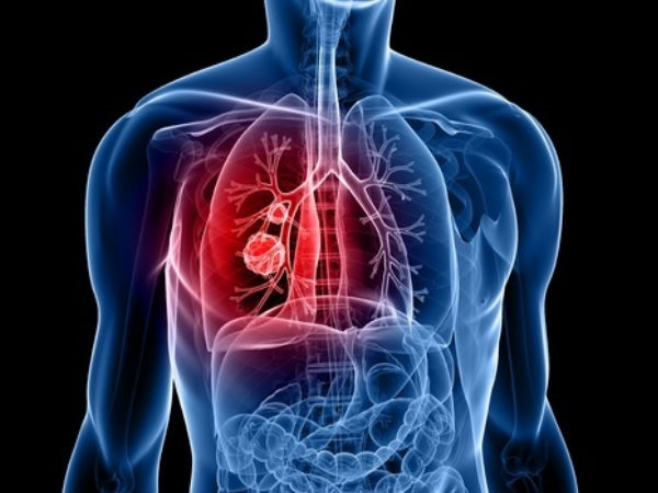 Bệnh này gây ra sự phát triển của mụn mủ trong các cơ quan nội tạng, làmhoại tử tế bào.