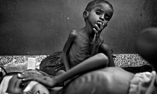 Một hình ảnh trẻ em bị suy dinh dưỡng do nạn đói ở châu Phi.Hiện nay,hiện tượng El Nino kéo dài khiến 36 triệu dânchâu Philâm vào cảnh đói khát. Hàng triệu trẻ em bị suy dinh dưỡng nghiêm trọng và không được chăm sóc y tế. Thiên tai như đang vắt kiệt sức người dân của các quốc gia đang ởtận cùng của đói nghèo, bệnh tật và xung đột.