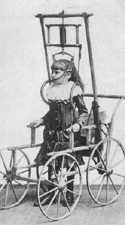 Đây là thiết bị điều trị chứng vẹo cột sống vào năm 1878, dành cho những người mắc các căn bệnh về cột sống vốn không thể đi lại, nhưng giờ có thể đi trong vài phút hoặc thậm chí mà vài giờ/ngày.