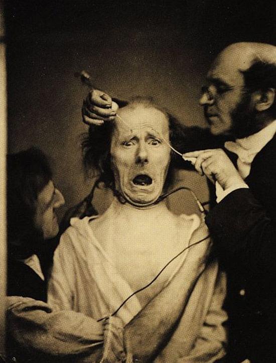 Một bác sĩ khoa thần kinh đang nghiên cứu biểu hiện trên khuôn mặt bằng cách sử dụng điện trên một bệnh nhân.