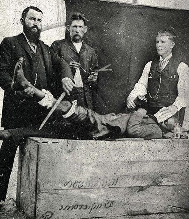 Đây là ca phẫu thuật đầu tiên dùng thuốc gây mê vào năm 1855.