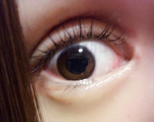 Cô nàng đã phẩu thuật mắt tới 7 lần.