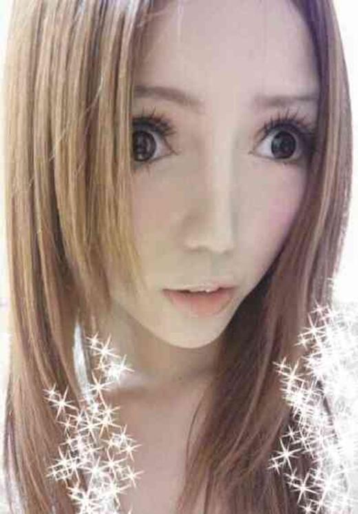 Không ai có thể ngăn cản ước mơ có khuôn mặt hoàn hảo của Na Na.