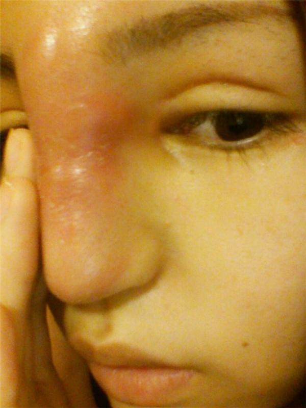 Chiếc mũi bị sưng to do nhiễm trùng.